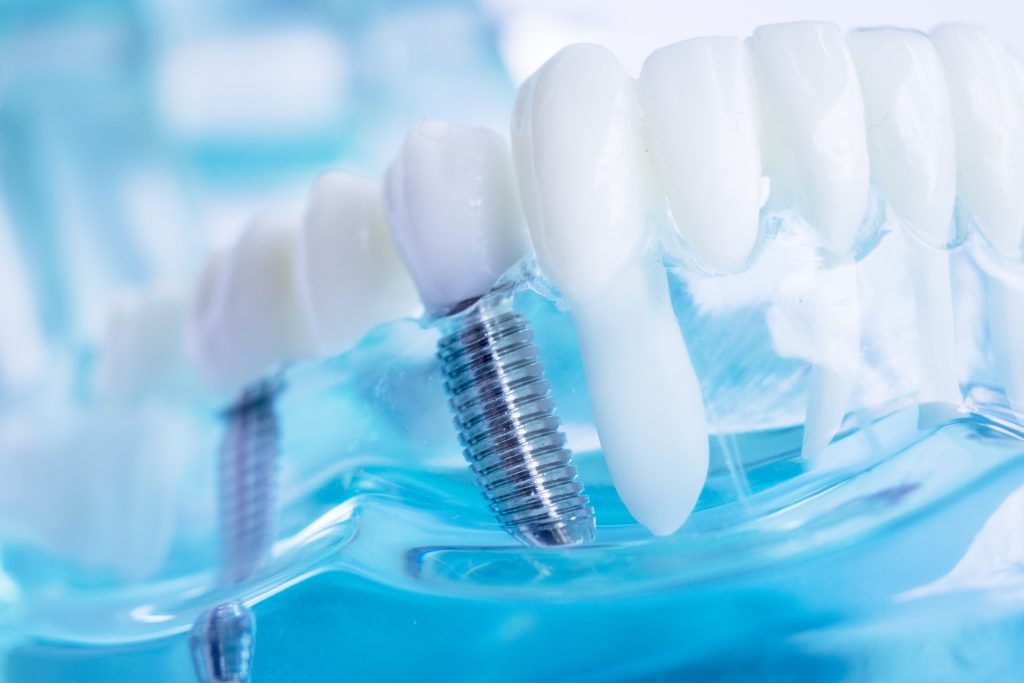 Dentist dental teeth implant